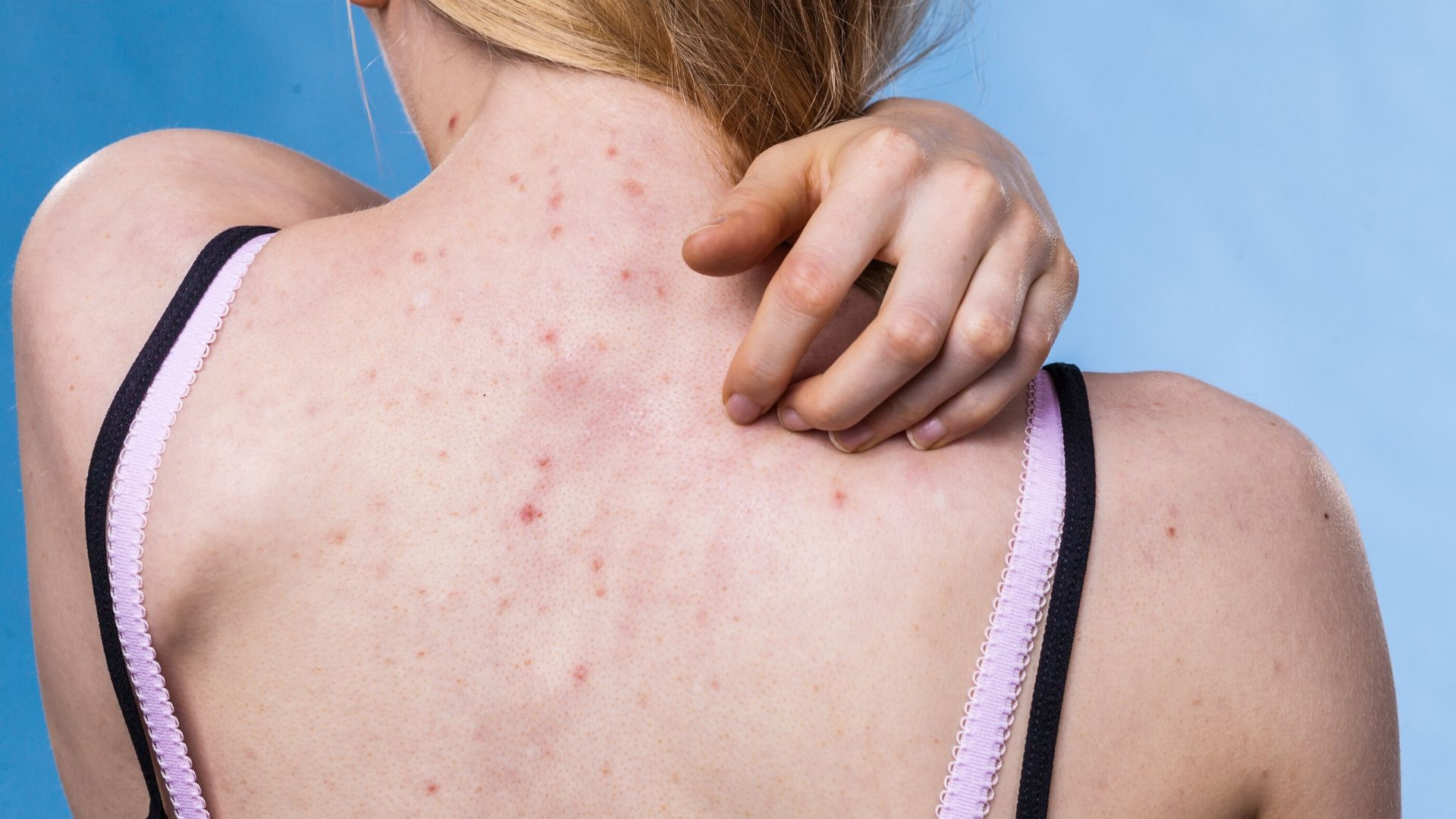 Facteurs qui aggravent une acné
