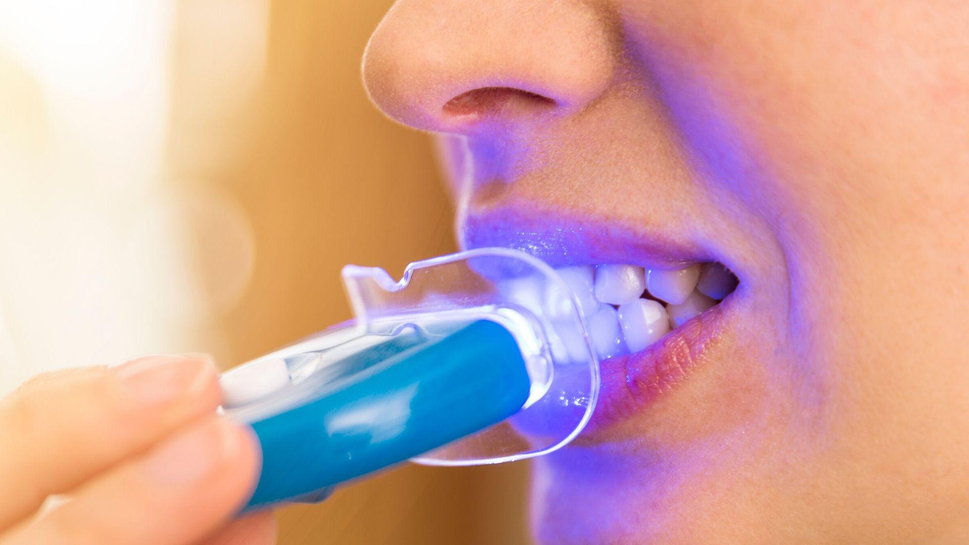 Blanchir les dents chez soi