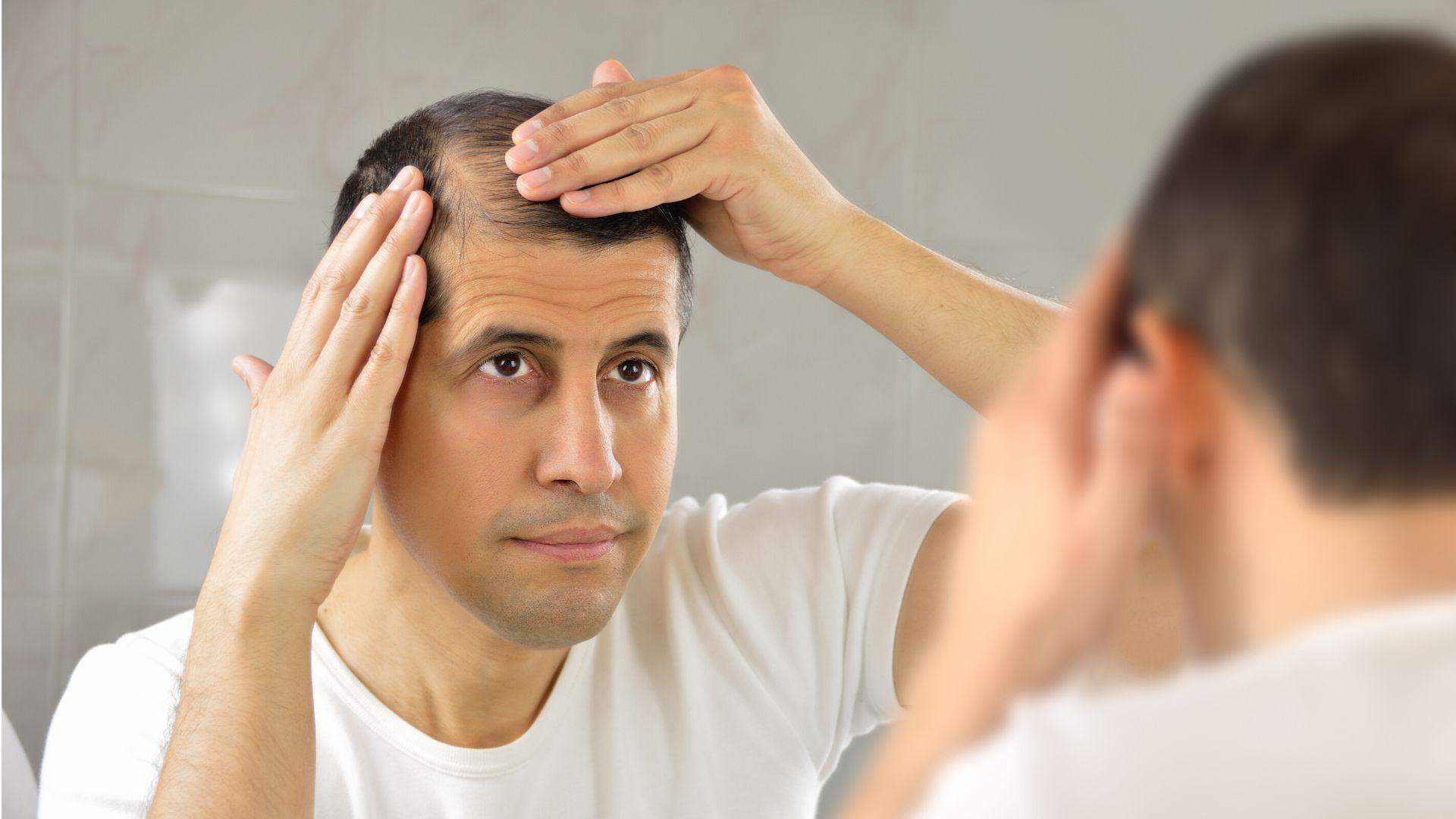 Types de chute de cheveux