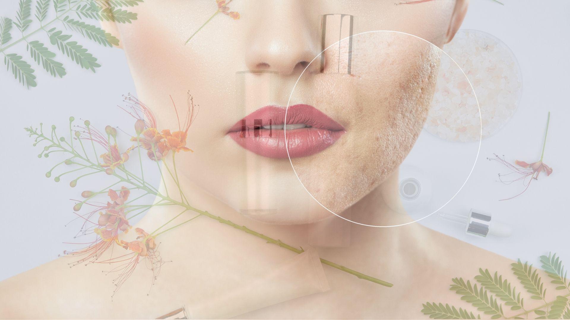 Mythes autour de l'acné